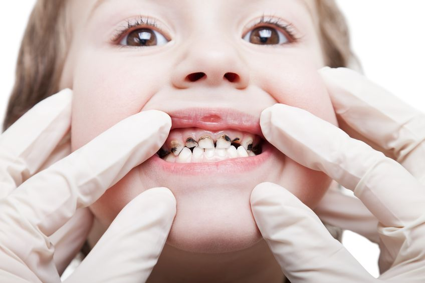 Health Professional Looking at a child's teeth